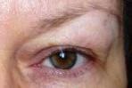 возрастные изменения кожи вокруг глаз